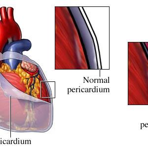 pericarditis2